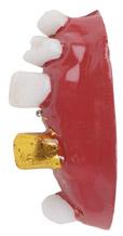 dentadura con un diente de oro pvc